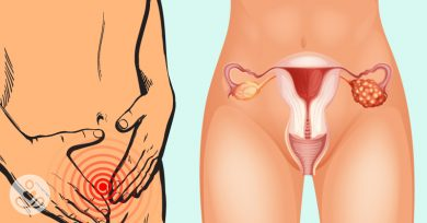 There's One Way to Check for Ovarian Cancer That Nobody Talks About - Here's Why