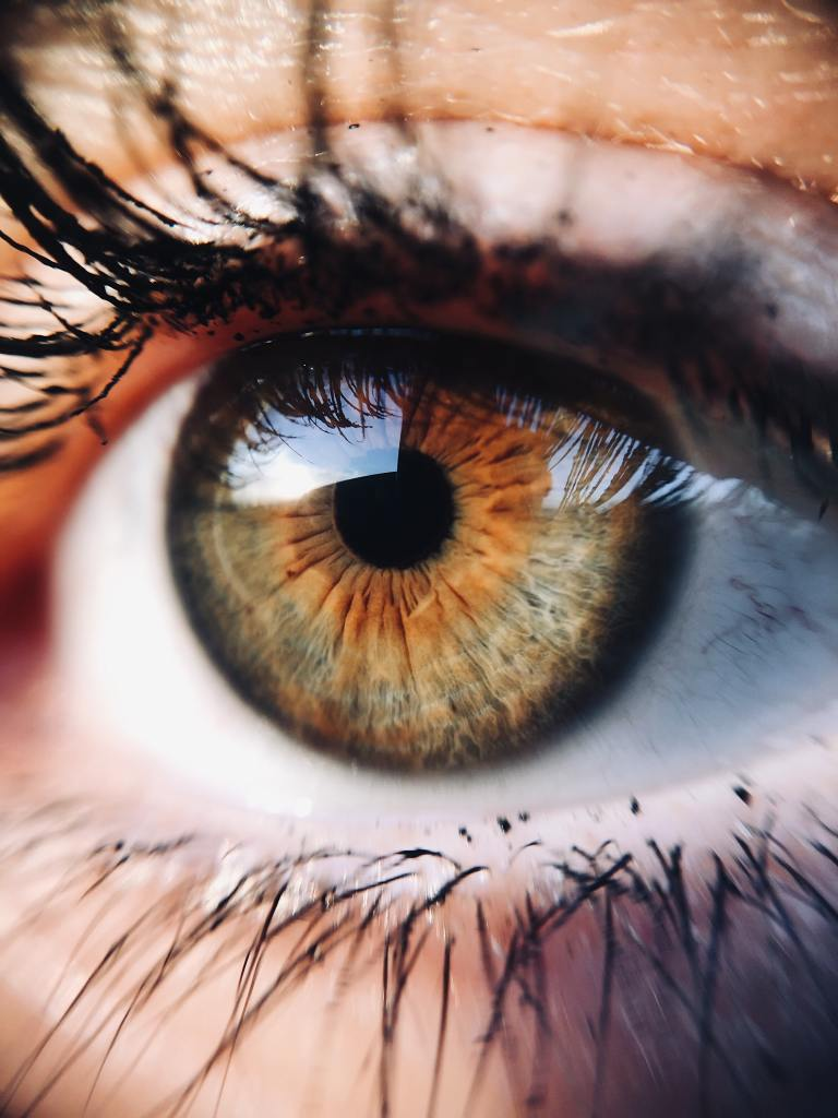 6+ Penyebab dan Cara Mengatasi Mata Bengkak