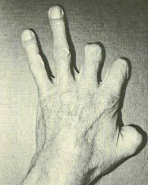 John-Wilson-hand-419