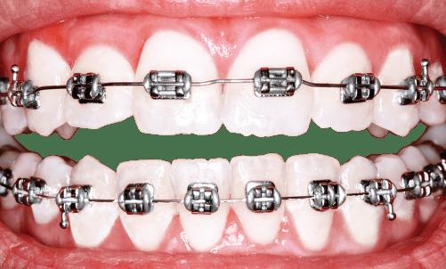 Um dos nossos mais comuns serviços na nossa clínica em Almada é a colocação de aparelho dentário