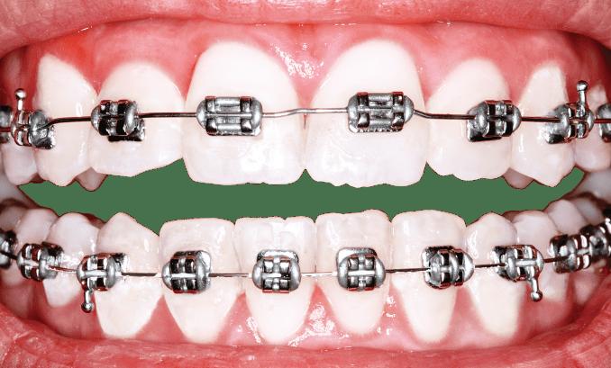 Idental, Asistencia social dental