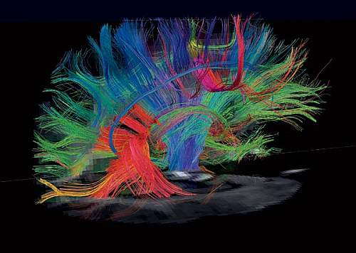 Our Magnificent Brain in Magnetic Resonance Imaging (MRI)