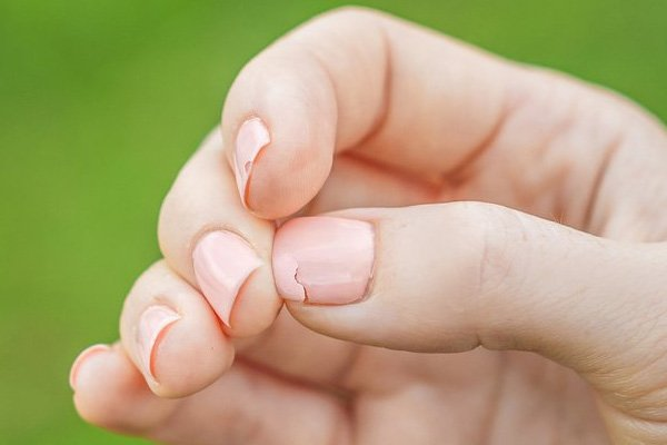 Damaged Thumb Nail