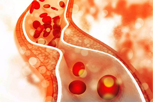 Running Improves High Blood Pressure