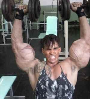 Hulk Brasileiro usa Synthol e ADE
