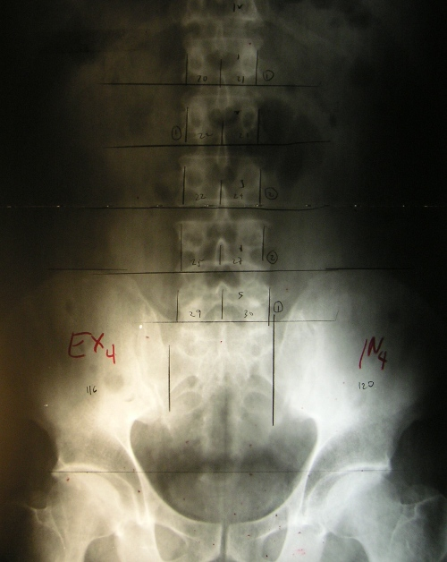 ap-pelvic-marked-xray-500