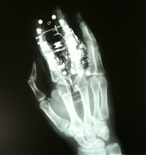 blogging hand x-ray