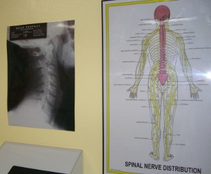 Spinal Nerve Xray Posters