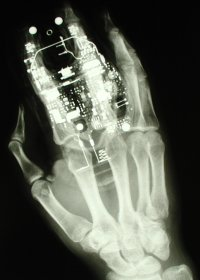 X-Ray-WikiSleuth
