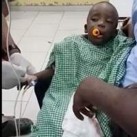 How The? Kid Got A Toy Stuck In His Throat!