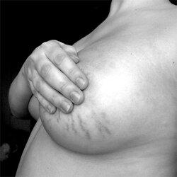 Cum să scapi de vergeturi după o pierdere rapidă în greutate - Feluri