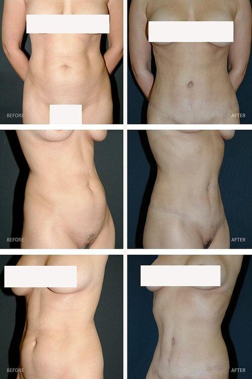 cât de multă pierdere în greutate după abdominoplastie)
