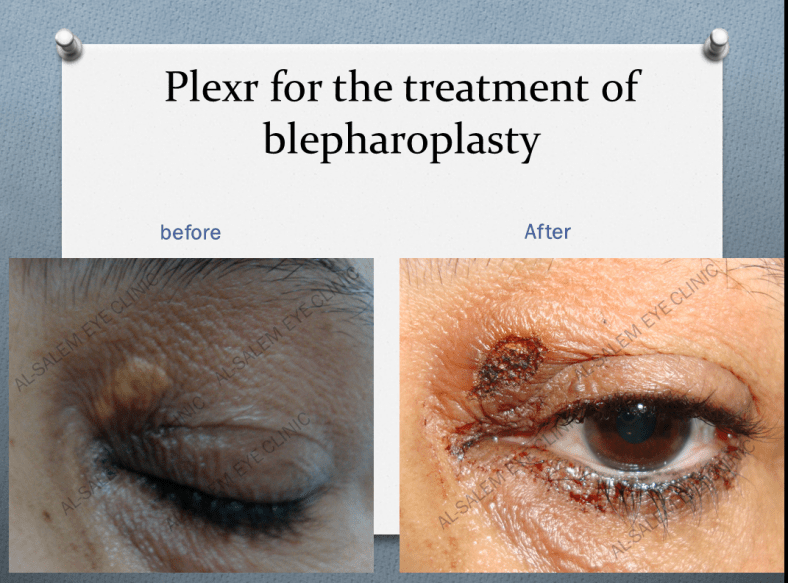 TREATMENT OF XANTHELASMA WITH PLEXR BEFORE AND AFTER IMAGE