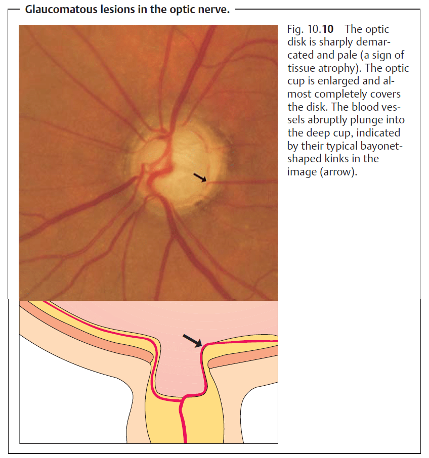 change in optic disc after glaucoma