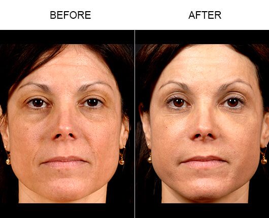 NaturalFill Orlando, NaturalFill Facial Filler Florida