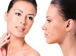 sutura-silhouette-cirurgia-plastica-rodrigo-fuzaro-01
