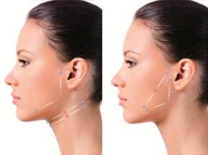 sutura-silhouette-cirurgia-plastica-rodrigo-fuzaro-02