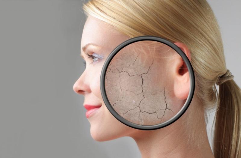 एक आवर्धक ग्लास के नीचे चेहरे पर त्वचा छीलने
