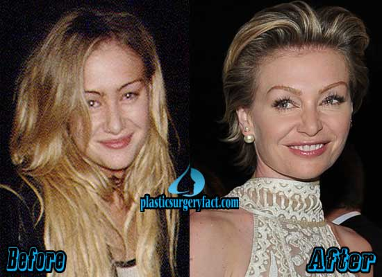 Portia De Rossi Plastic Surgery Before And After Pictures