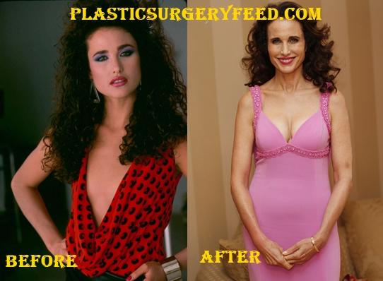 Andie MacDowell Breast Implants