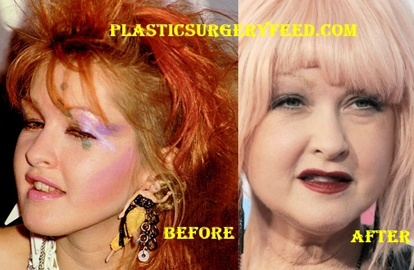 Cyndi Lauper Lips Surgery