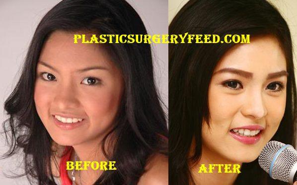 Kim Chiu Nose Job Rhinoplasty