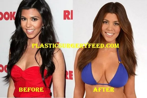 Kourtney Kardashian Breast Implants Surgery