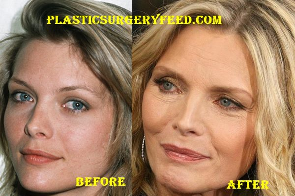 Michelle Pfeiffer facelift