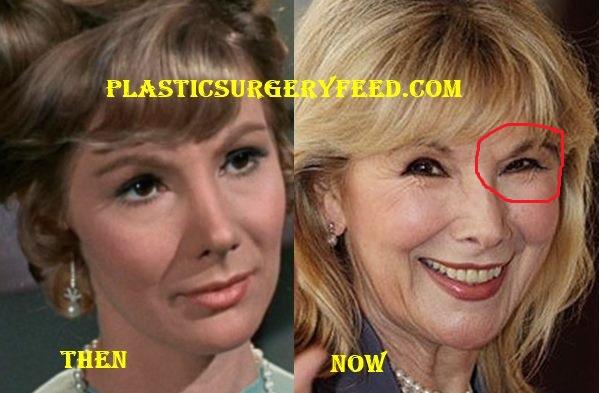 Susan Hampshire Botox Plastic Surgery