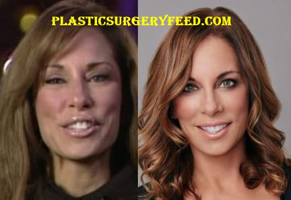 Colleen Dominguez Botox