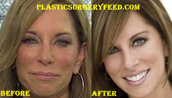 Colleen Dominguez Facelift Surgery