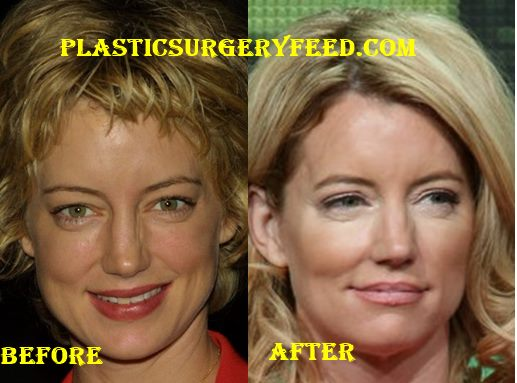 Cynthia Watros Botox