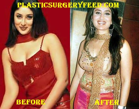 Kareena Kapoor Breast Implants