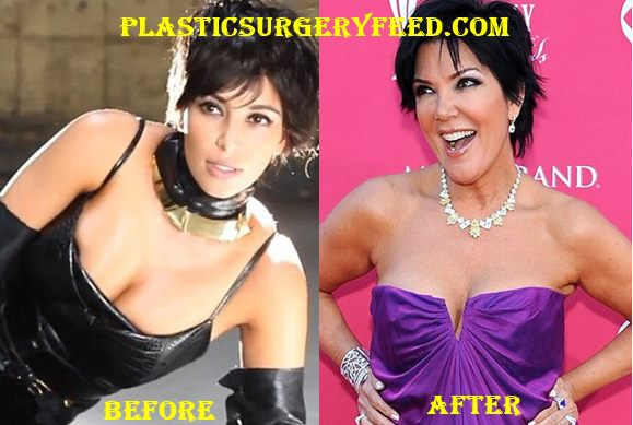Kris Jenner Breast Implants