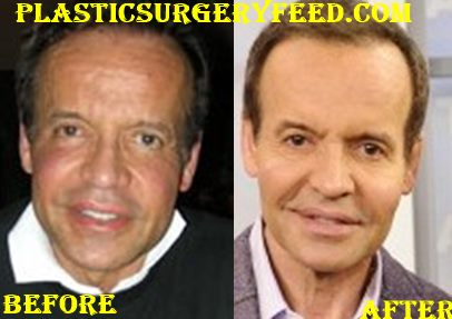 Louis Licari Lips Surgery