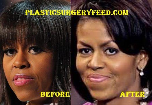 Michelle Obama Botox
