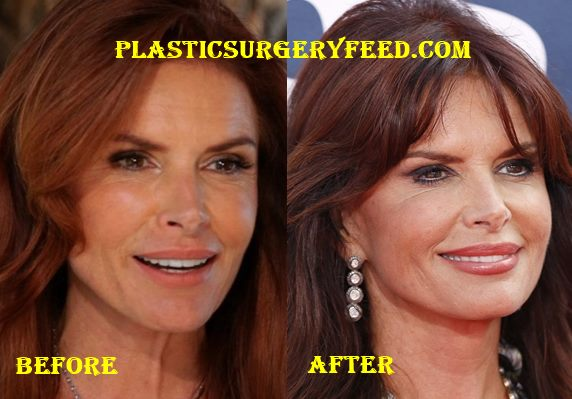 Roma Downey facelift