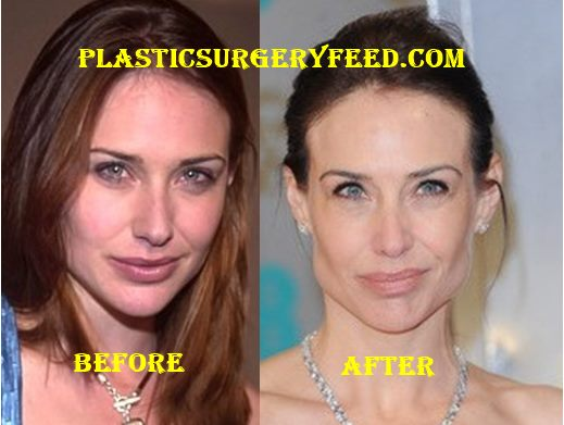 Claire Forlani Botox