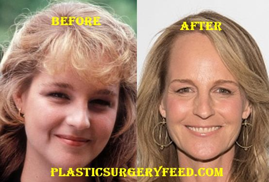 Helen Hunt Facelift