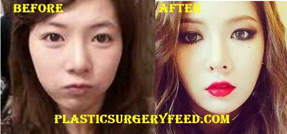 Hyuna Eyelid Surgery
