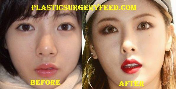 Hyuna Nose Job Rhinoplasty
