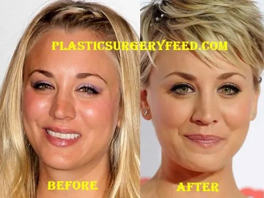 Kaley Cuoco Nose Job Rhinoplasty