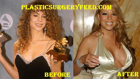 Mariah Carey Breast Implants Boobs Job
