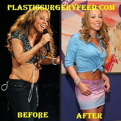 Mariah Carey Liposuction