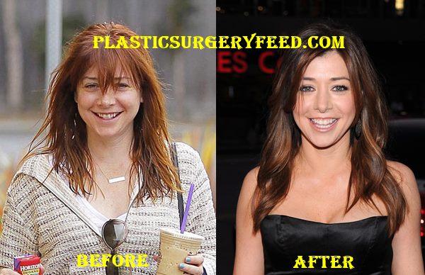 Alyson Hannigan Breast Implants