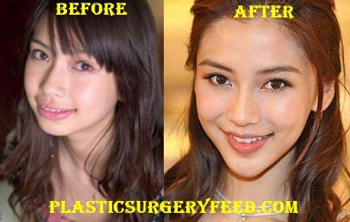 Angelababy Chin Surgery