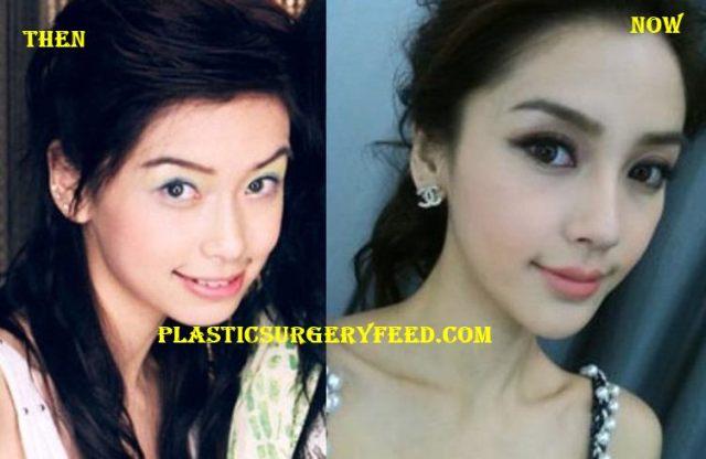 Angelababy Lip and Eyelid Surgery