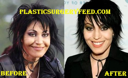Joan Jett Cheeks Implant