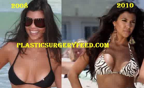 Kim Kardashian Breast Implants Boobs Job
