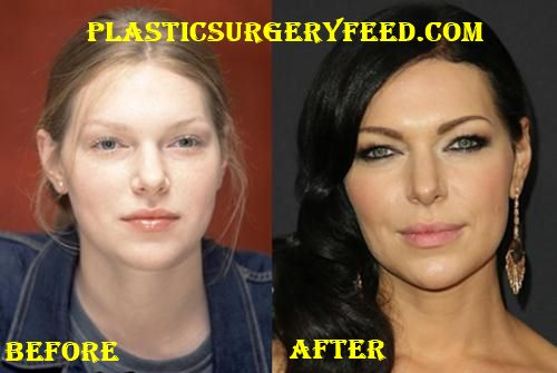 Laura Prepon Lips Implant